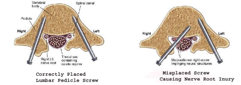 bad screw